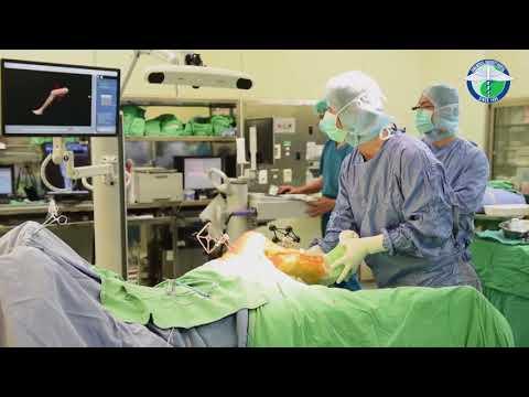 用最高科技 給你最好活力-MAKO機器人手臂膝關節置換術