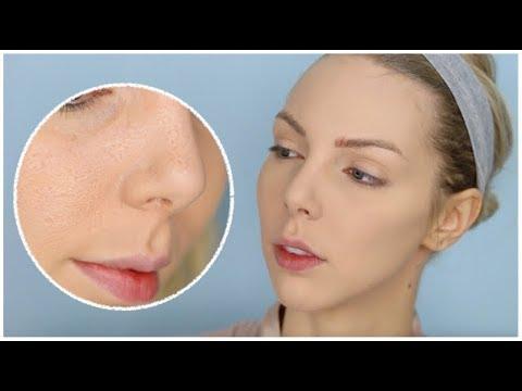Le masque pour la peau huileuse de la personne avec les époques opprimées