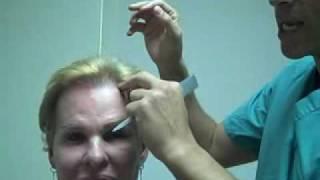 Dr.Epstein – Procedimiento de entradas de el cabello 1 año