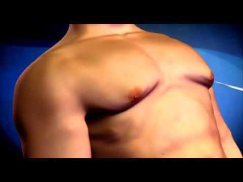 Les masseurs selon laugmentation de la poitrine