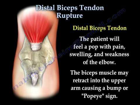 Les moyens de la douleur des articulations et les muscles