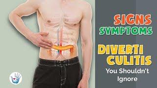10 Symptoms of Diverticulitis