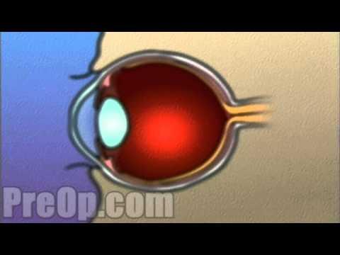 Rehabilitáció a látásvesztés miatt