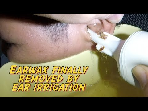 Hard Earwax Finally Removed by Ear Irrigation After 5 days of Ear wax Softener