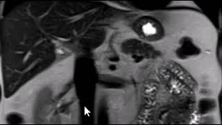 How to read an MRI of the abdomen