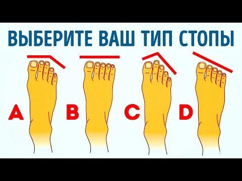 Niż leczyć kości na stopie na palucha