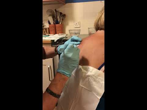 Infected Sebaceous Cyst Wound 17 Days Post Lancing - Part 10