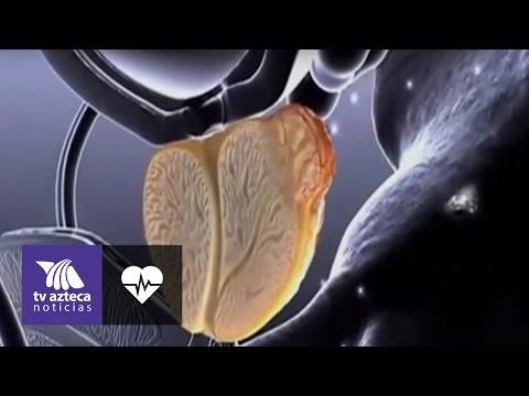 El ultrasonido de próstata en Togliatti
