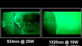 Video of SlimLipo vs Smartlipo Laser Fat Melting