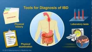 Diagnosing IBD