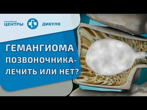 Мелоксикам прана при остеохондрозе