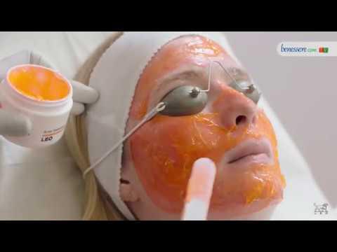 Cura di dermatite di atopic da risposte di omeopatia