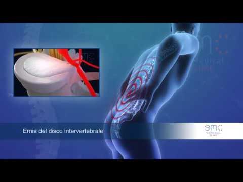 Ernia nei sintomi colonna vertebrale toracica di 3,5 millimetri