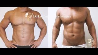 Liposuction Houston - 4D VASER High-Definition Liposuction