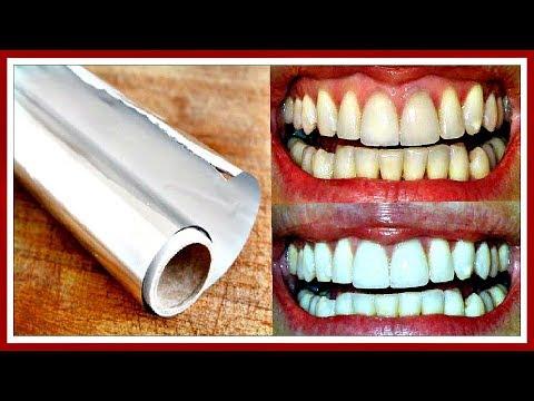 МГНОВЕННОЕ отбеливание зубов в ДОМАШНИХ условиях ФОЛЬГОЙ.