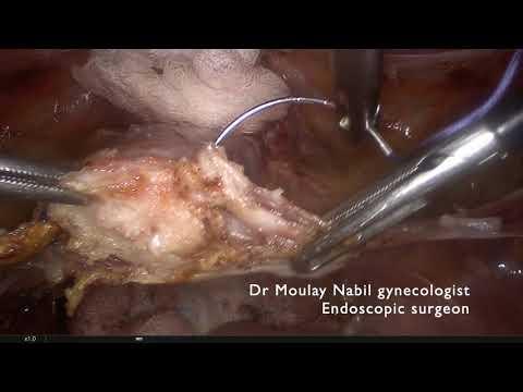 Standardowa sakrokolpopekscja  przy wypadaniu narządu rodnego