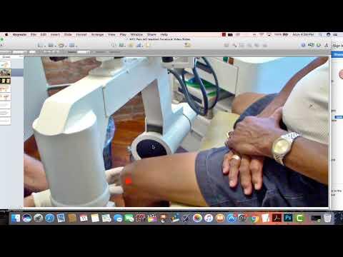 Как лечить остеоартроз стопы