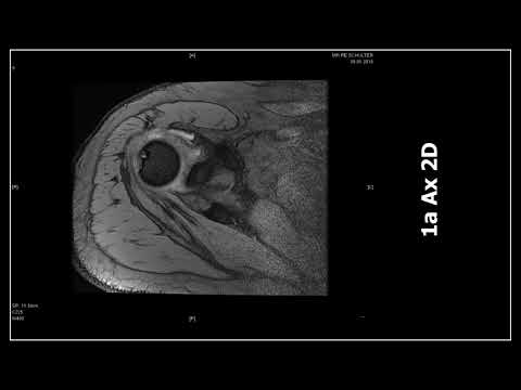 Diffuse Bandscheibenvorfall in der Halswirbelsäule