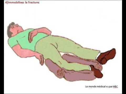 Les normes et les violations de la pression artérielle