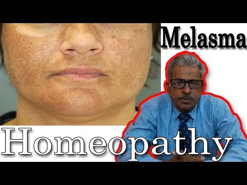 Download Melasma (chloasma) Remedy in Homeopathy by Dr. P.S. Tiwari HD Video