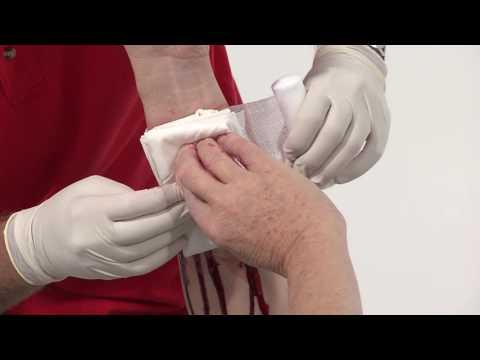 Medikamente gegen Bluthochdruck kapoten