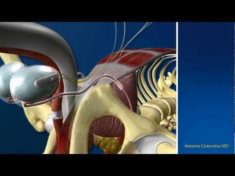Dispositivo per la prostata