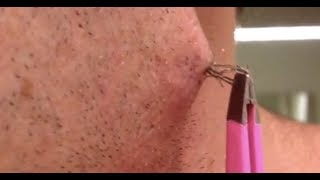 Largest Ingrown Hair Removal Compilation   2018   Most Satisfying