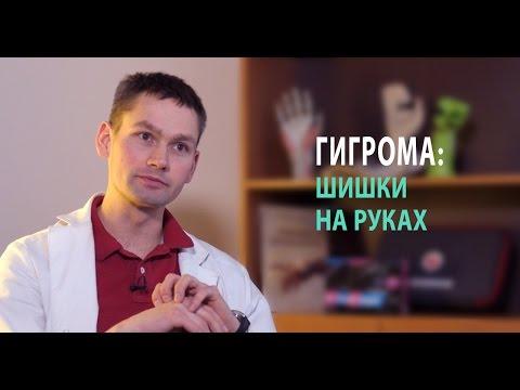 Вальгусном плоскостопии видео