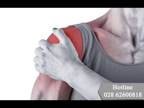 Liệt tay do tổn thương đám rối thần kinh cánh tay