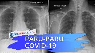 Pentingnya Vaksin, Dokter Bandingkan Rontgen Paru-paru Pasien Covid-19 yang Sudah Divaksin dan Belum