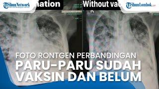 VIRAL FOTO Rontgen Paru-paru Pasien Covid-19 yang Sudah Divaksin dan Belum, Ini Penjelasan Dokter
