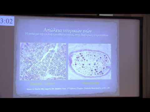 Ανάπτυξη φαρμάκων για τον διαβήτη 2