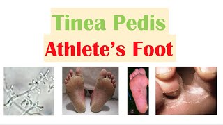 Athlete's Foot (Tinea Pedis)| Causes, Risk Factors, Signs & Symptoms, Diagnosis and Treatment