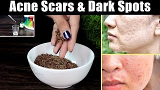 Remove Acne Scars & Dark Spots at Home Naturally