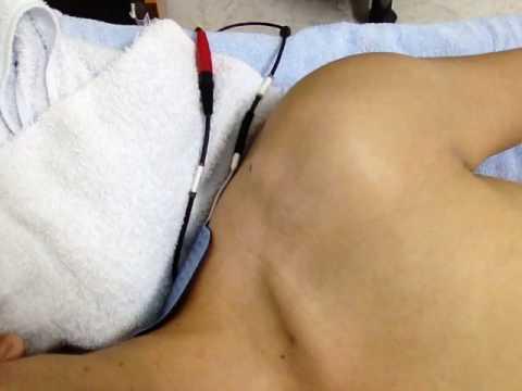 รูปภาพบนฝ่ามือของ neurodermatitis