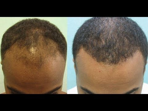 Traktować włosy olejek kamforowy