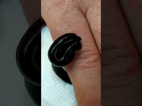 Пиявки на кисту сустава пальца руки. Синовиальная киста, гигрома.