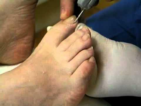La eccema el tratamiento los pinchazos