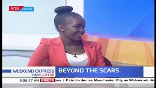 Beyond the scars: Embracing your innate beauty