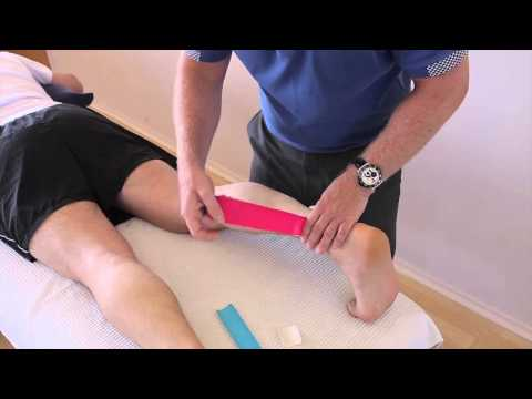 Video Calf Pain (Sakit Betis)