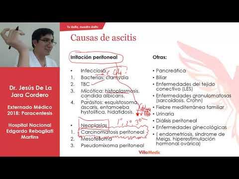 Tratamentul de blocaj al artrozei umărului