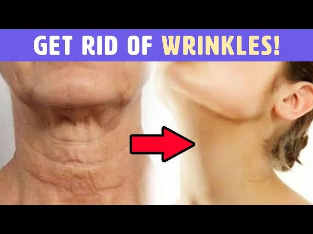 11 Ways To Get Rid Of Wrinkles That Every Woman Should Know