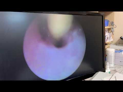 Enterobiosis podolsk