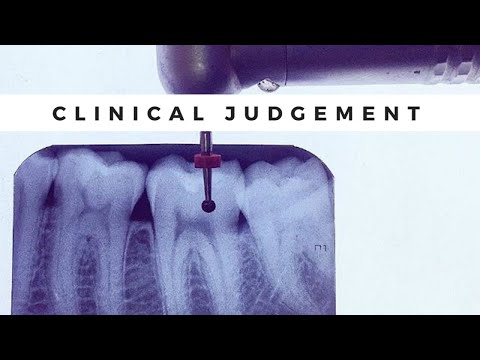 Clinical Judgement- NDEB/NBDE/OSCE/AFK/ACJ/Dental Boards ...
