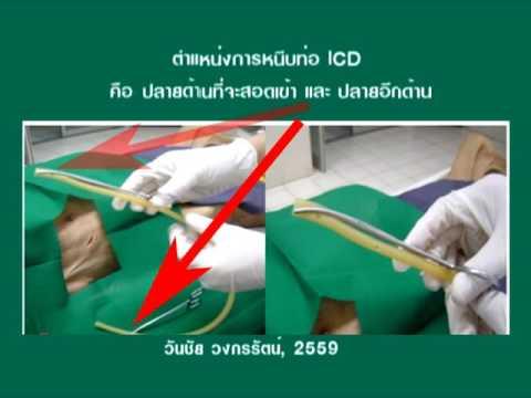 อุ้งเชิงกรานเส้นเลือดตีบ ICD