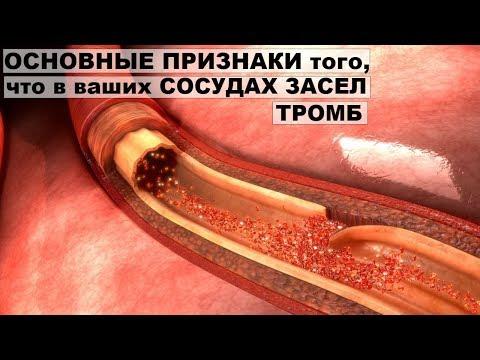 От гипертонии тмин