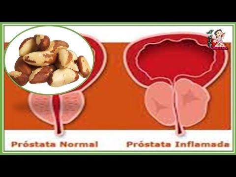 La stimolazione della prostata è