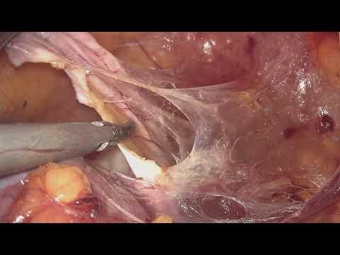 Impatto eiaculazione sulla prostata