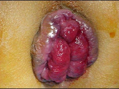Bystry che guarisce dopo emorroidi di operazione
