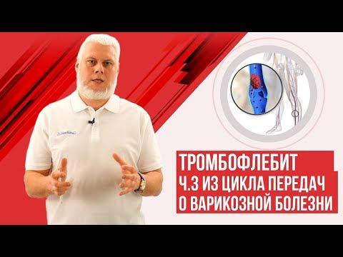 Seimova kenőcs visszér ellen